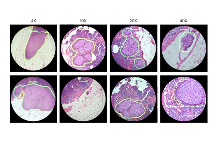google ar microscope cancer featured website