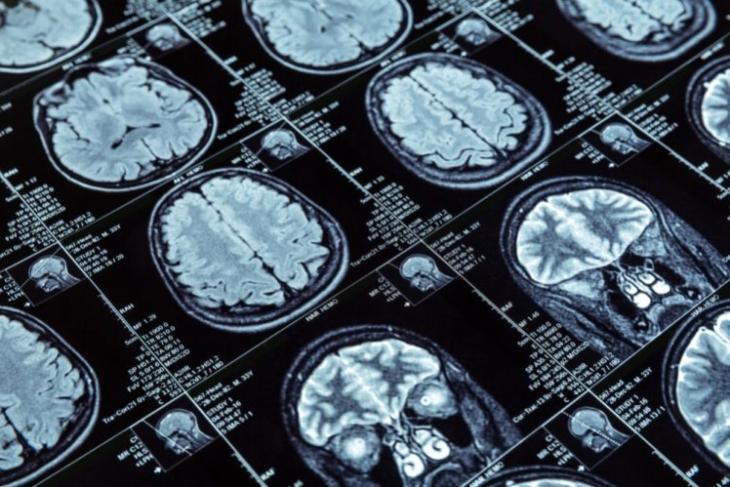 brain scan ai dementia detection
